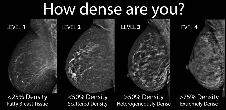 Breast Density Chart